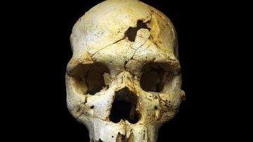 Cráneo de Atapuerca