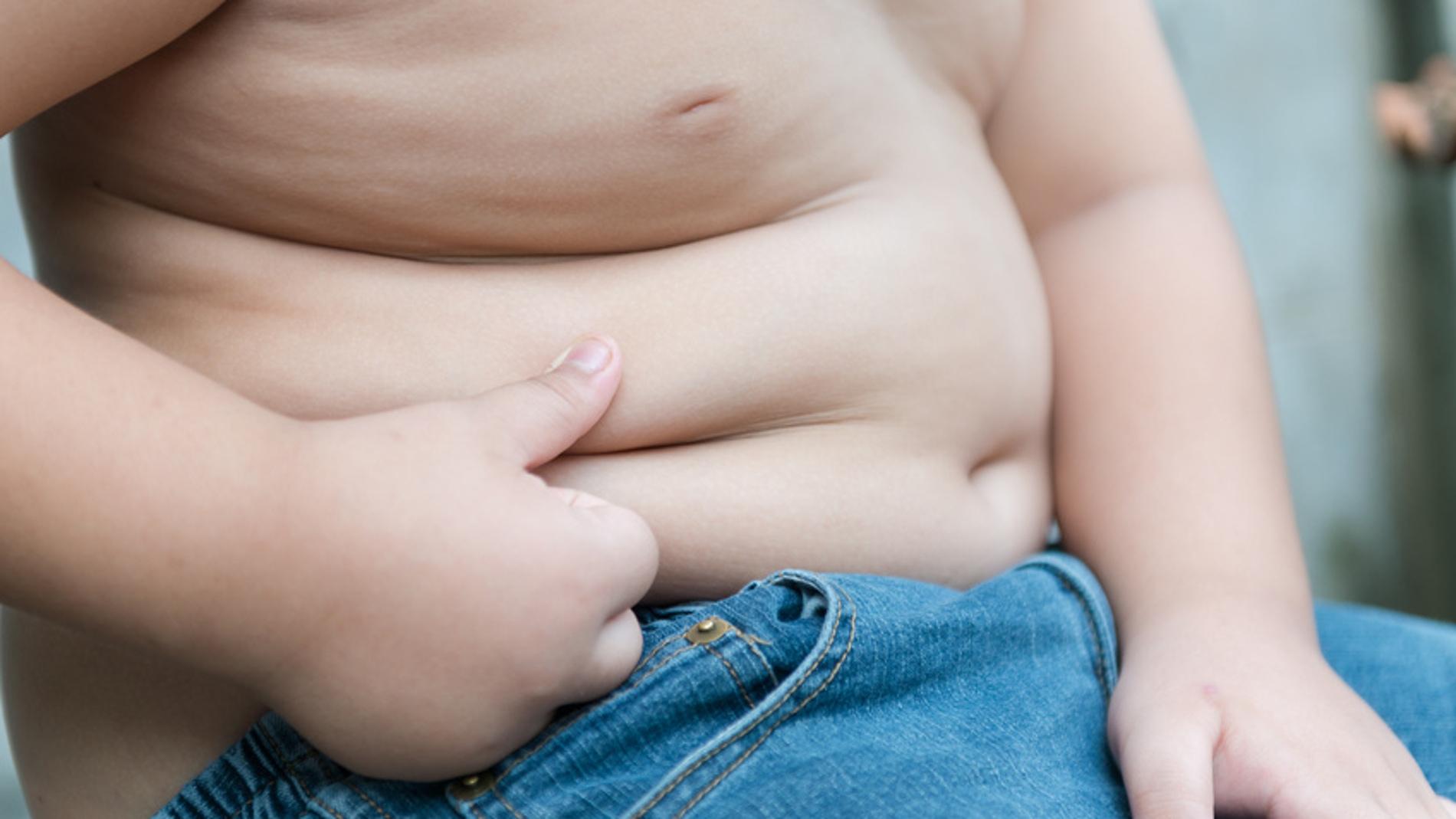 Aproximadamente un tercio de los obesos