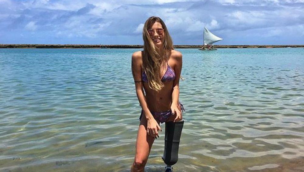 La emocionante historia de Paola Antonini, la modelo que siguió desfilando tras perder una pierna
