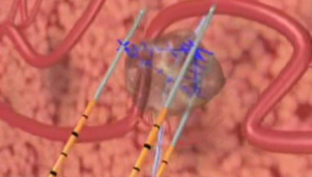 Recreación de las placas atacando el tumor