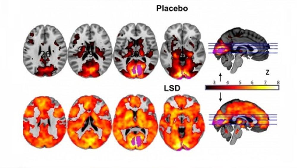 Comparación del comportamiento del cerebro bajo los efectos del LSD y un placebo