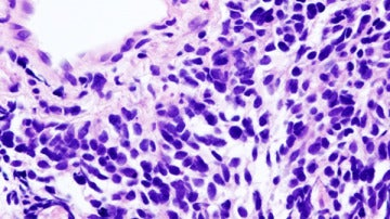 Carcinoma de pulmón de células pequeñas.