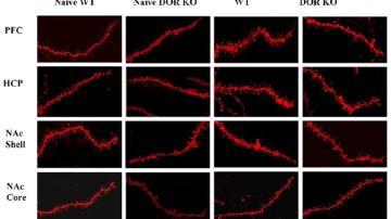 Figura: Cambios neuronales inducidos por