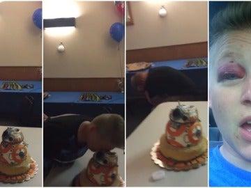 Una joven estampa su cara contra una tarta de cumpleaños y casi pierde un ojo