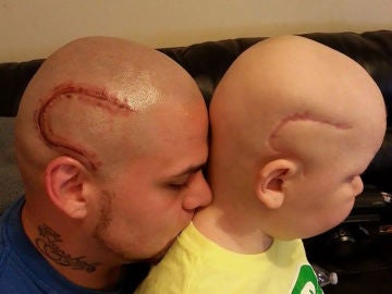 Un padre se tatúa la cicatriz de su hijo para que se sienta normal