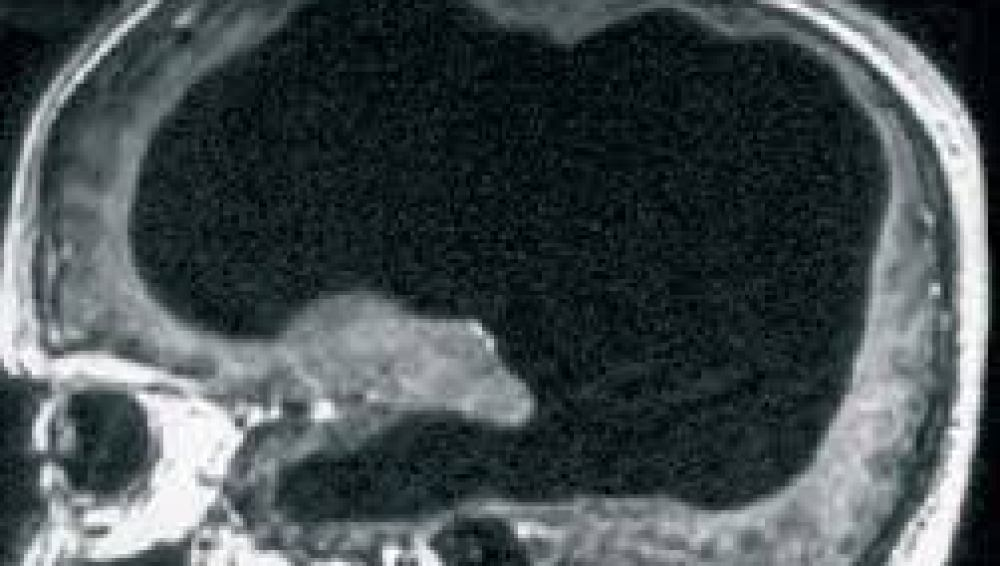 Escáner del cerebro del paciente