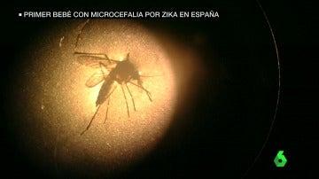Frame 7.027771 de: zika