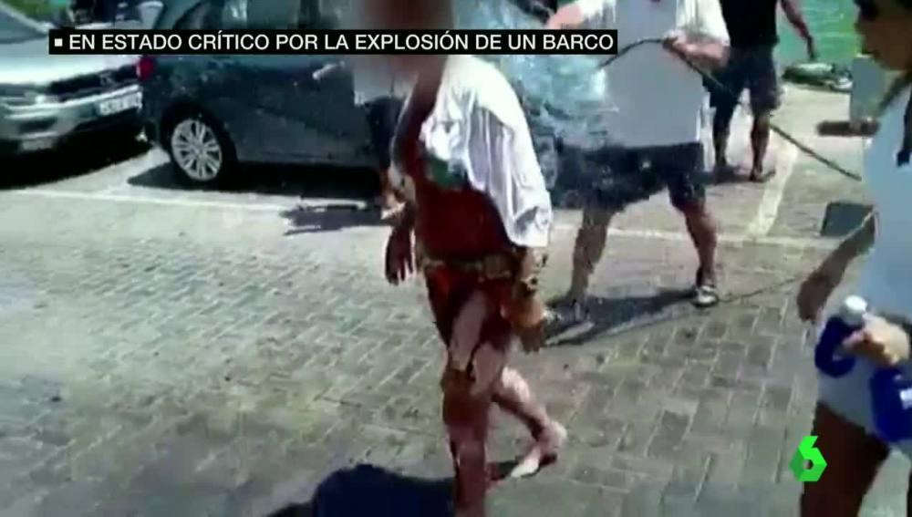 Uno de los heridos tras la explosión en el puerto de Ibiza