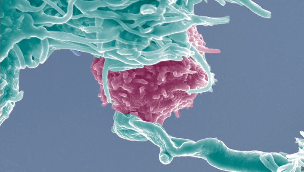 Histología de muestras de colon de raton