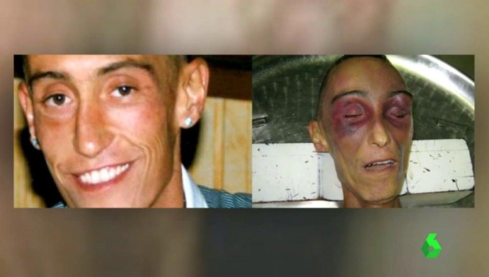 """Frame 20.024208 de: Un informe sobre la muerte de Stefano Cucchi comienza a dar la razón a la familia: """"Su imagen hace pensar en tortura"""""""