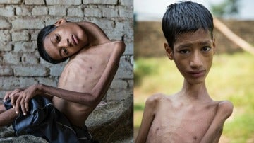 Mahendra Ahirwar antes y después de la operación de cuello