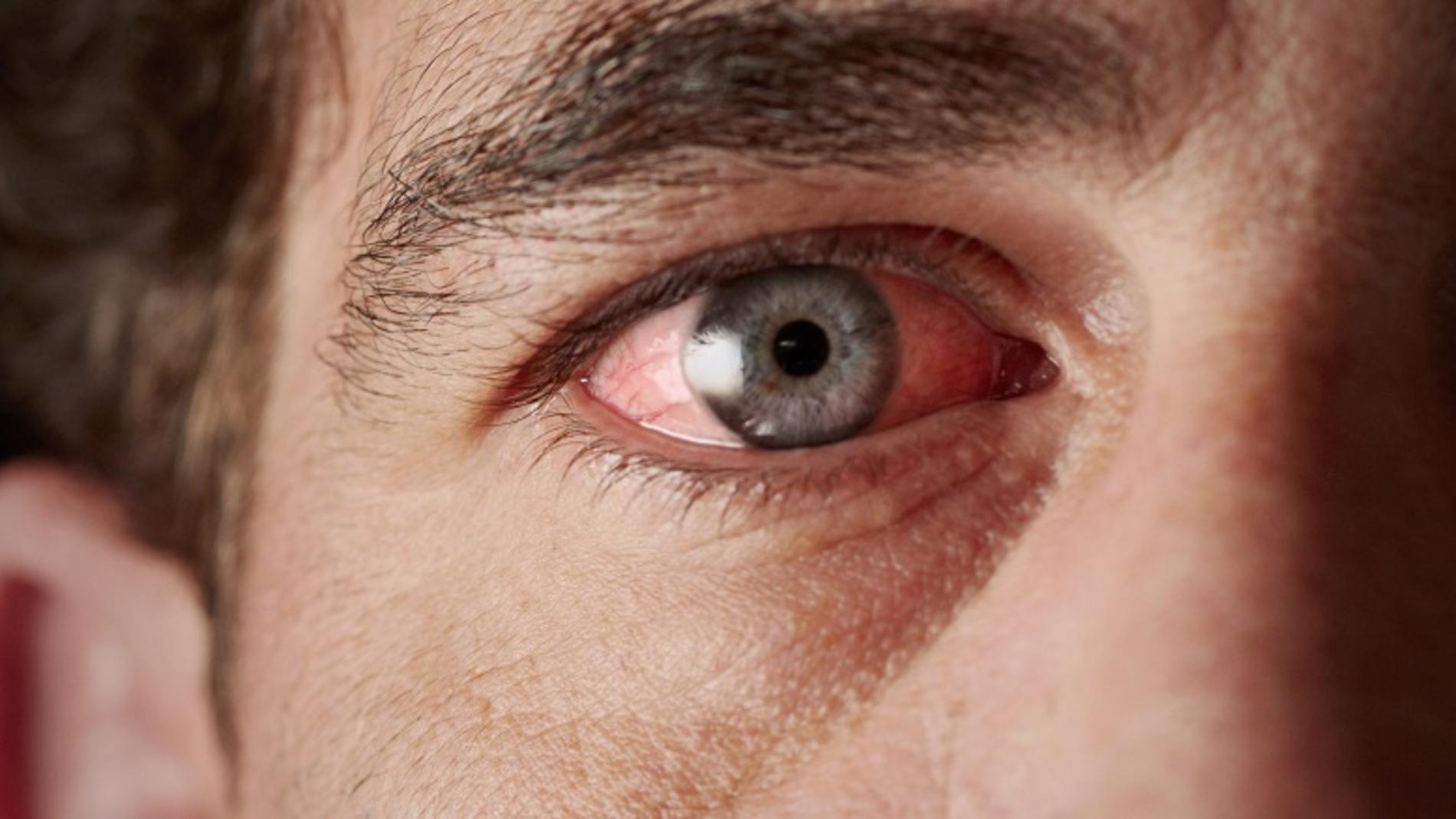 Daño en los ojos