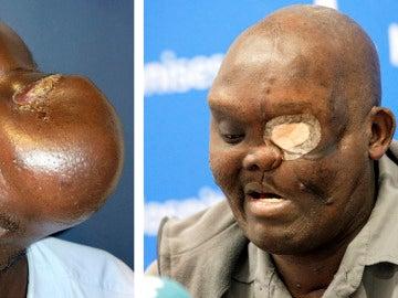 El paciente Mike Koech en dos imágenes, antes y despues, de ser operado por el doctor Pedro Cavadas