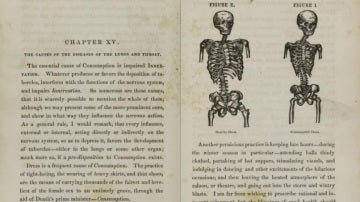Popular pathology: Pancoast on the curability of consumption: medicated inhalation. 1855.