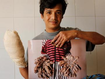 El joven conocido como 'hombre árbol' de Bangladesh, Abul Bajandar