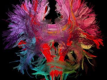 Cerebro hipercableado