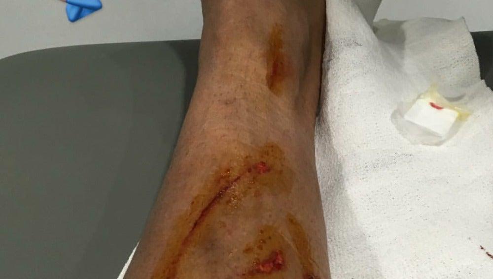 La pierna de Danilo tras el choque con David García
