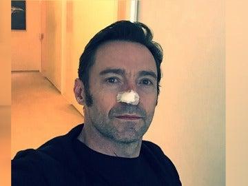 Hugh Jackman revela que ha sido operado de nuevo por cáncer de piel