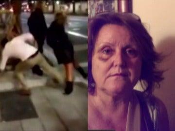 Conchita Colás, víctima del agresor de la patada