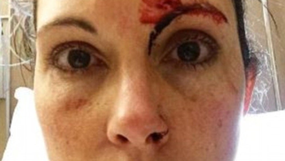Kelly Herron en la foto publicada después del intento de violación