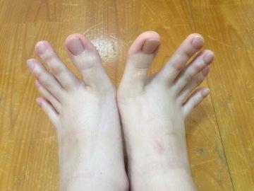 La extraña forma de los pies de una joven se vuelve viral