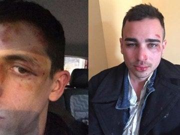 Uno de los jóvenes agredidos ha contado en redes cómo sucedió todo