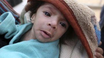 Las sanciones de Europa y EEUU arruinan indirectamente el tratamiento contra el cáncer para cientos de niños de Siria