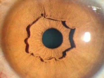 Una extraña forma que sobresale del iris de una mujer china.