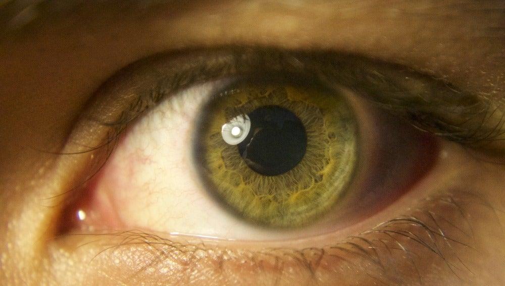 El desprendimiento de retina es más frecuente en personas mayores que se han vuelto miopes