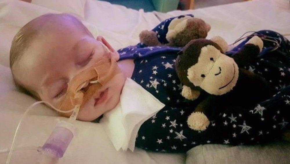 Charlie Gard, el bebé con una enfermedad rara que necesitaba dinero para tratarse en EEUU