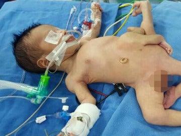 Bebé Iraquí con ocho extremidades