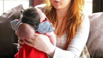Rosa, el bebé que nació con el cerebro fuera del cráneo