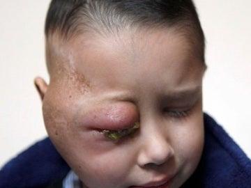 Un niño de ocho años sufre un tumor en el ojo derecho