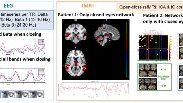 Analizar las alteraciones en las senales neuronales mejora el diagnostico de la epilepsia