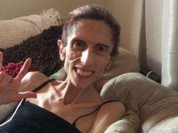 Rachael, la mujer de 39 años que pesa 20 kilos por la anorexia