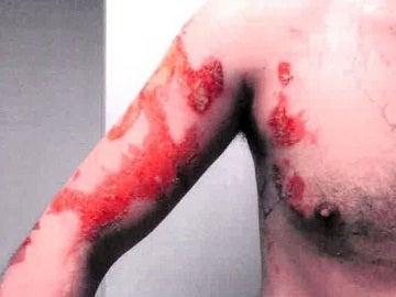 Las quemaduras que sufrió el cocinero por el agua hirviendo que le lanzó el jefe