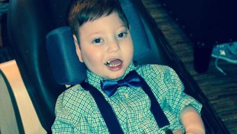 Malachi, el pequeño de cuatro años con discapacidad