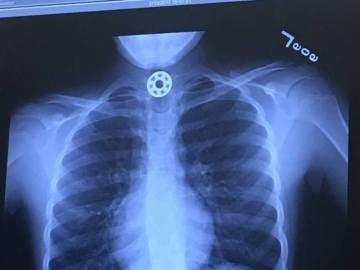 Radiografía de la niña que muestra el Fidget Spinner