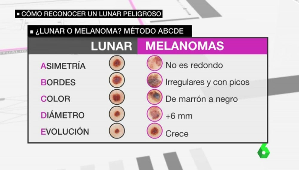 LA SEXTA TV | Los peligros del sol y el verano: ¿cómo distinguir una ...