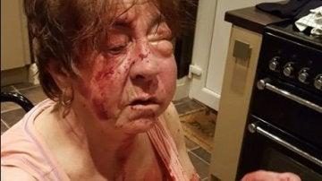 Barbara Dransfield tras la agresión
