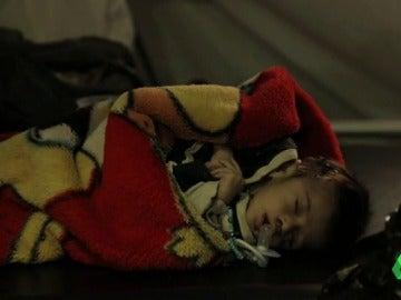 Uno de los pequeños que atiende Médicos Sin Fronteras