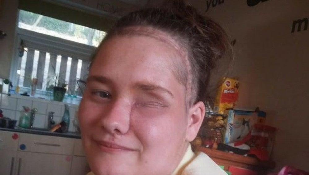 Ceri Jones tras la larga operación