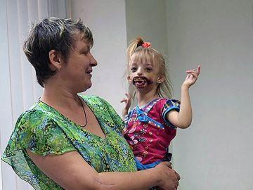 Darina, la niña que sufre una extraña deformación