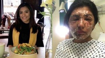 Resham Khan, antes y después del ataque