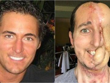 Tim McGrath antes de sufrir el cáncer y tras la última operación