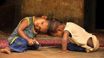 Los pequeños Honey y Singh unidos por la cabeza