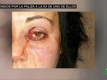 """Consigue la detención del exnovio de su hija tras una brutal agresión machista: """"Estos hijos de puta le han pegado una paliza de muerte"""""""