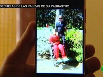 Las secuelas de Alba, la niña que quedó tetrapléjica por las palizas de su padrastro, una década después