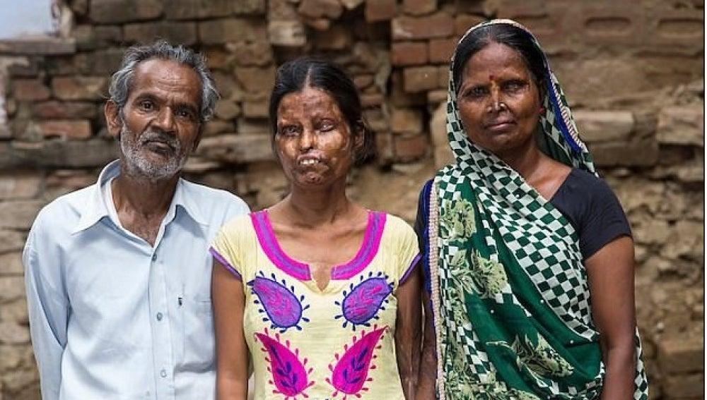 El marido posa junto a su mujer y una de sus hijas a las que roció con ácido