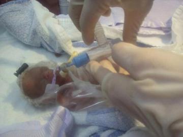 Un bebé prematuro del tamaño de una pelota de tenis consigue sobrevivir